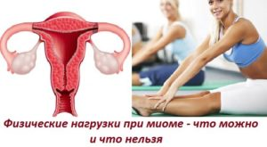 Лфк при миоме матки упражнения