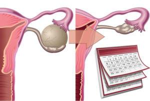 Можно ли беременеть при кисте яичника