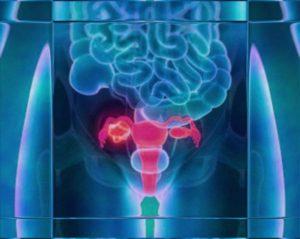 Боль в яичнике при овуляции