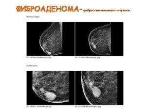 Чем отличается фиброаденома от кисты молочной железы