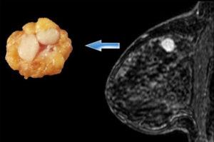 Причины появления фиброаденома молочной железы