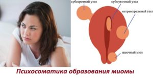Луиза хей миома