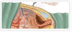 Лапароскопия удаление миомы