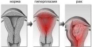 Гиперплазия эндометрия и миома матки это приговор
