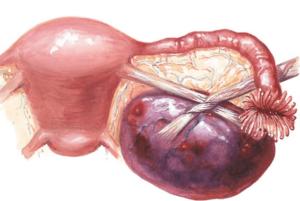 Киста яичника при менопаузе лечение