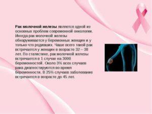 Лактация и рак молочной железы