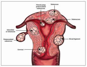Миома матки субсерозный узел лечение