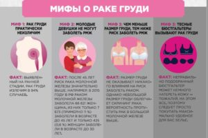 Сколько живут с раком молочной железы