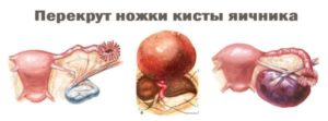 Киста яичника симптомы и лечение у мужчин