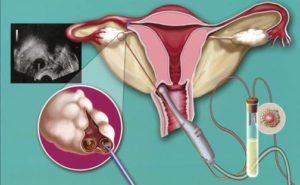 Как простимулировать яичники чтобы забеременеть