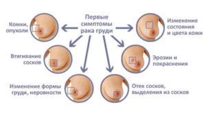 Первые признаки рака молочной железы на ранней стадии у женщин