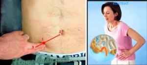 Как понять что болит аппендицит или яичник