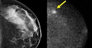 Как выглядит на снимке рак молочной железы