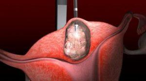 Узловая миома матки лечение
