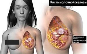Киста в молочной железе у женщины