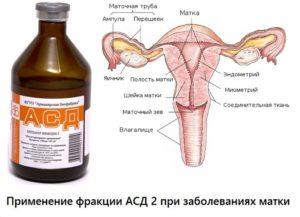 Асд 2 фракция при миоме матки