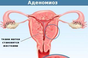 Миома матки в сочетании с эндометриозом что это