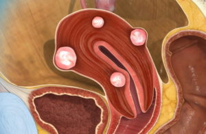 Миома матки гиперплазия эндометрия