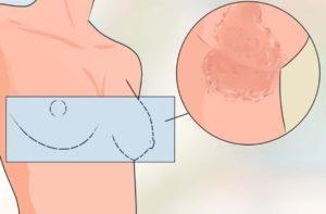 Опрелости под молочными железами у пожилых женщин
