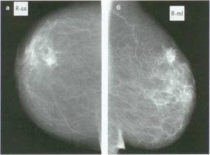Гранулема молочной железы что это такое