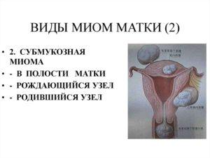 Субмукозная миома матки 2 типа