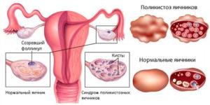 Лечение поликистоза яичников без гормонов