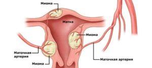 Миома тела матки
