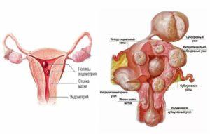 Интерстициально субмукозная миома матки