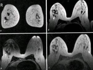 Очаговая асимметрия молочной железы