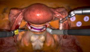 Операция полостная по удалению матки и яичников