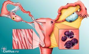 Внутренний эндометриоз генитальный