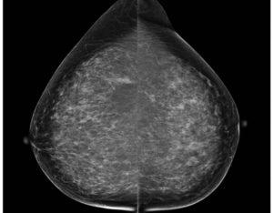 Рентген молочной железы