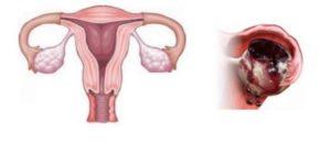 Клинические рекомендации апоплексия яичника