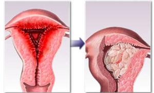Гиперплазия эндометриоза матки