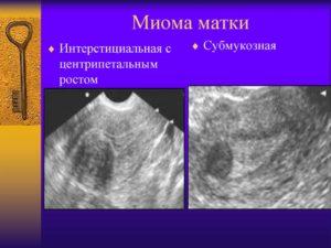 Миома матки с центрипетальным ростом узла что это такое