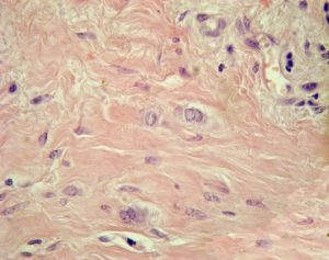 Муцинозный рак молочной железы
