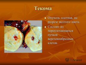 Текома яичника