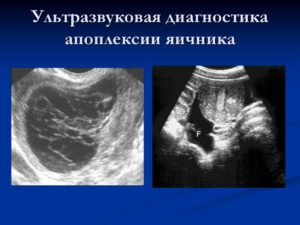 Апоплексия яичника диагностика