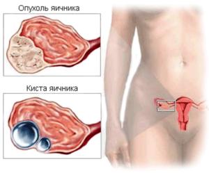 Киста яичника диагностика