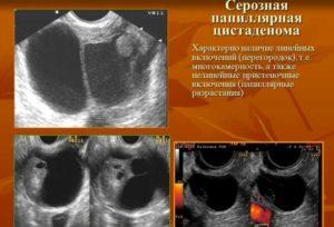 Киста яичника папиллярная