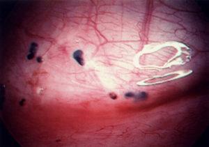 Очаговый эндометриоз матки