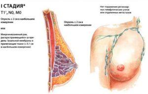 Рак 2 степени молочной железы