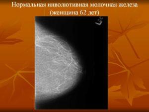 Инволютивные молочные железы что это такое