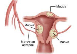 Спираль при миоме матки