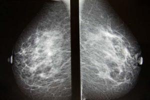 Удаление опухоли молочной железы у женщин