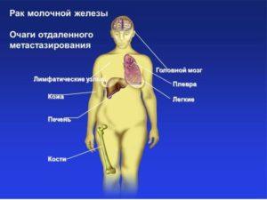 Гормонозависимая опухоль молочной железы это хорошо