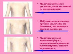 Молочные железы у девочек