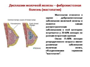 Фкб молочной железы