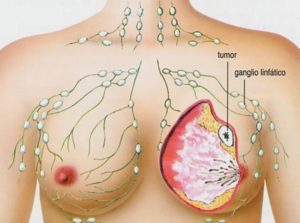 Причины рака молочной железы у женщин