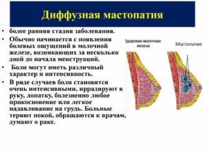 Диффузные изменения молочной железы что это такое